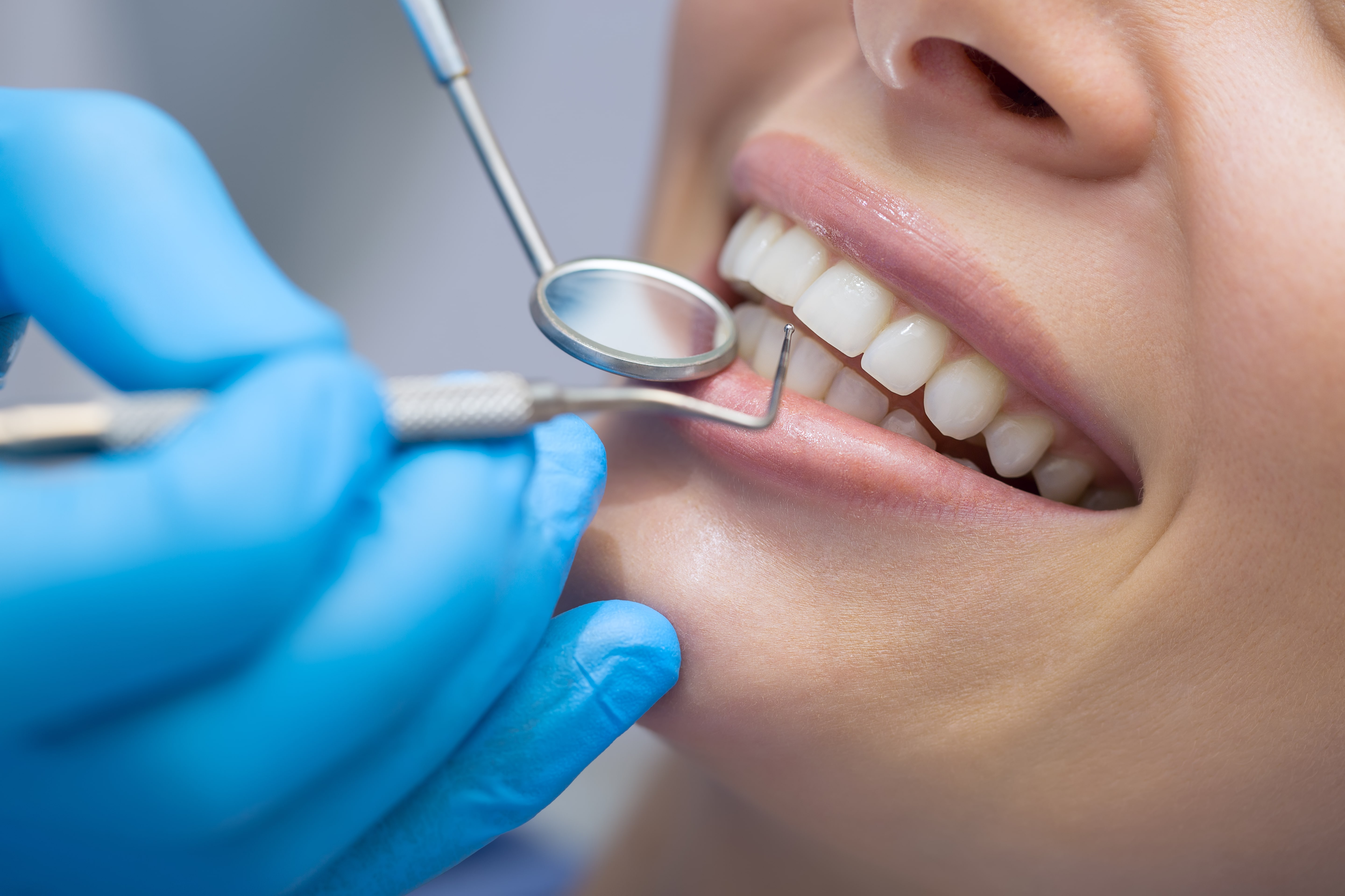 dental veneers Comprehensive Dental Care Gainesville FL