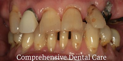 Before & After: Complete Denture Before