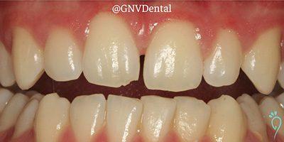 Before & After: Composite Restoration Of Broken Tooth After